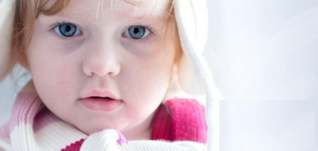 Photo of لعلاج السواد تحت العين عند الاطفال