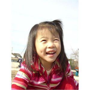 1bab4ecd9d9de5cae8b60df2109598d14438a2de_large-300x300 صور أجمل غمازات وخدود بنات روعة, خد وغمز اطفال جميلة جدا جديدة