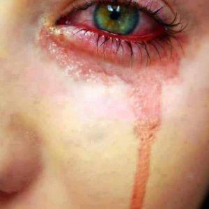 2015-1-300x300 صور دموع, صور بنات معبره حزينه جدا, صور بنات حزينه, صور بنات حزينه روعة, صوربنات تبكي