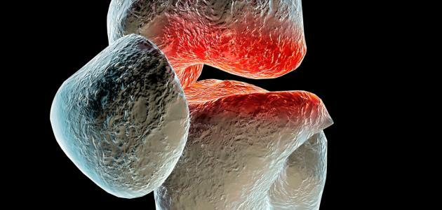 Photo of كيف نعالج مرض هشاشة العظام